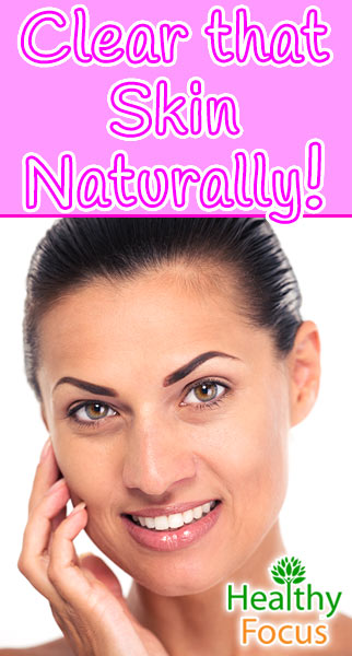 mig-clear-that-skin-naturally