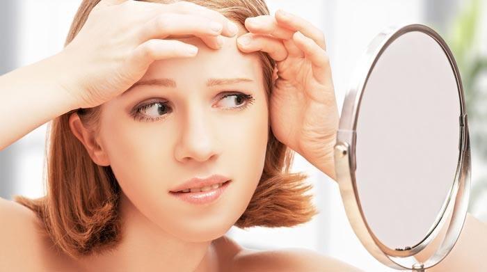 melrose oil for acne