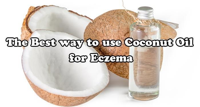 The Best way to use Coconut Oil for Eczema