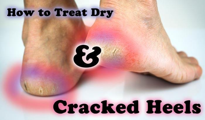 hdr-How-to-Treat-Dry-and-Cracked-Heels