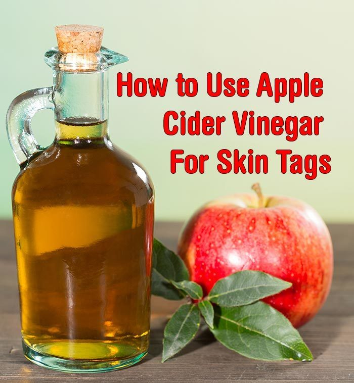 How to Use Apple Cider Vinegar For Skin Tags - Healthy Focus
