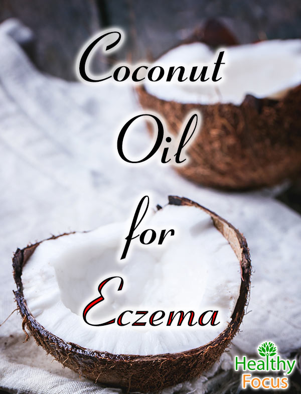 mig-Coconut-Oil-for-Eczema