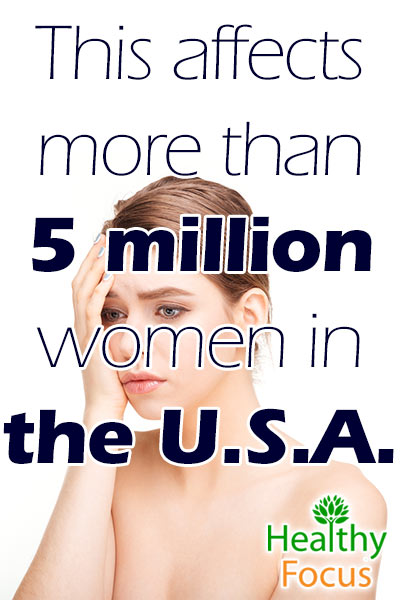 mig-this-affects-more-than-5-million-women-in-the-u-s-a
