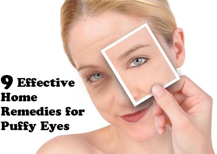 9 Effective Home Remedies for Puffy Eyes