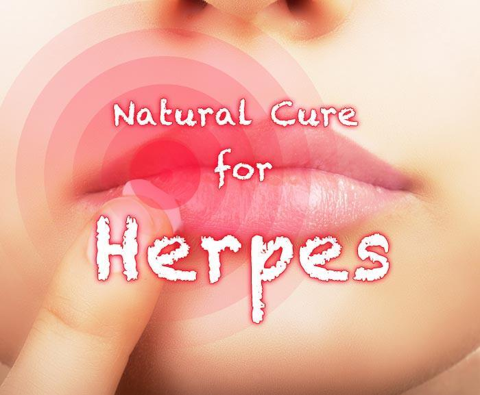 In The Future Will There Be A Cure For Herpes