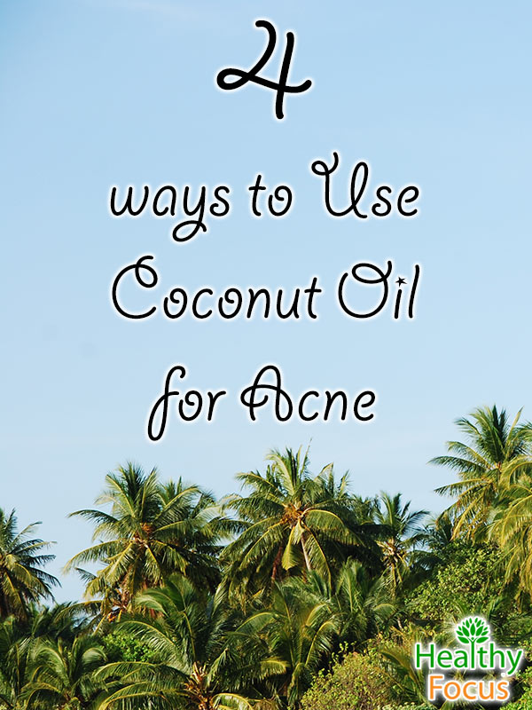 MIG-4--ways-to-Use--Coconut-Oil--for-Acne--