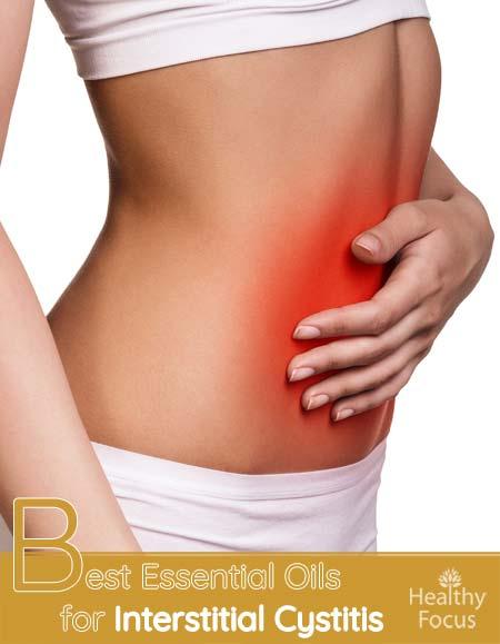 Best Essential Oils for Interstitial Cystitis