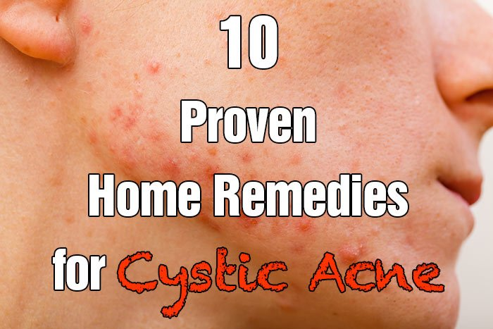 10 Proven Home Remedies for Cystic Acne