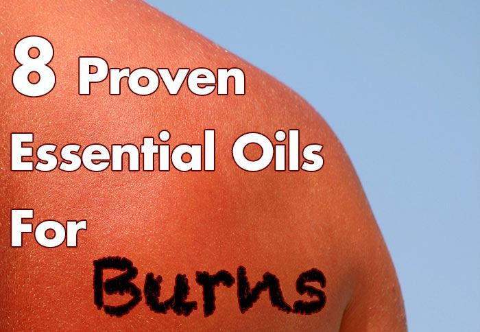 8 Proven Essential Oils For Burns