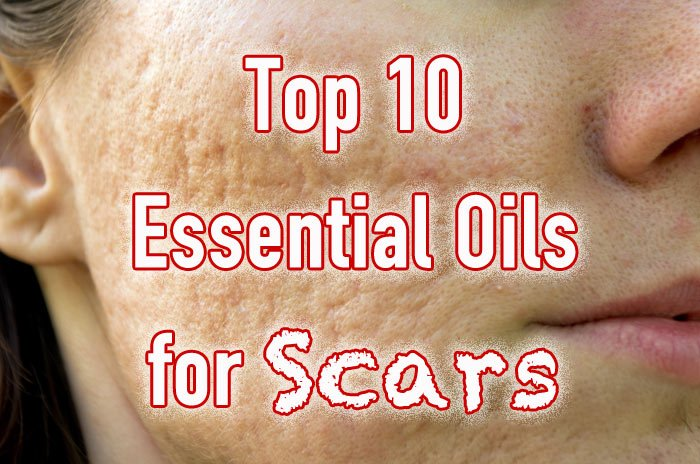 Top 10 Essential Oils for Scars