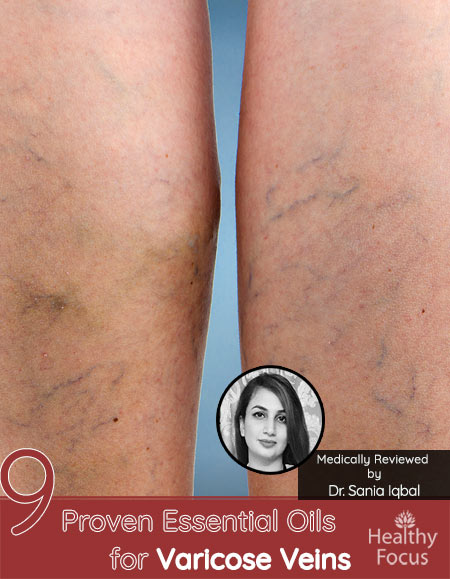 9 Proven Essential Oils for Varicose Veins
