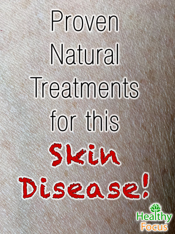 mig-Proven--Natural--Treatments--for-this--Skin-Disease