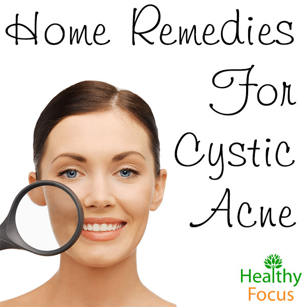 migHome-Remedies-For-Cystic-Acne