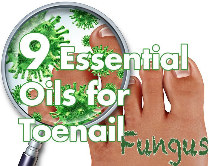 9 Science Backed Essential Oils for Toenail Fungus