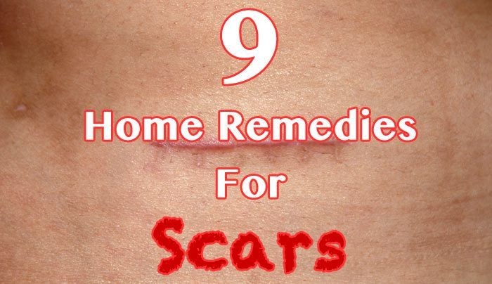 hdr-9-Home-Remedies-For-Scars