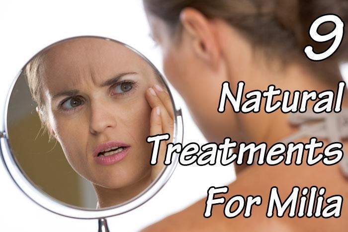 9 Natural Treatments For Milia