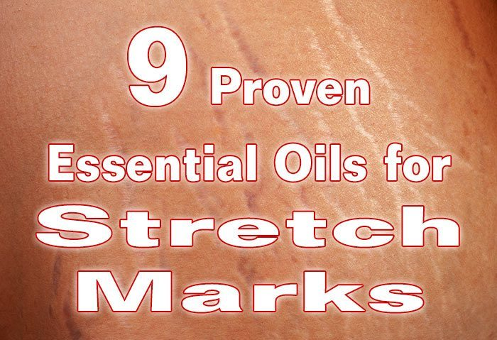 9 Proven Essential Oils for Stretch Marks