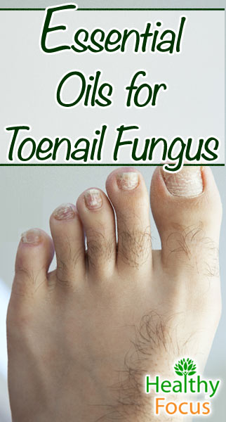 11 Science Backed Essential Oils for Toenail Fungus - Healthy Focus