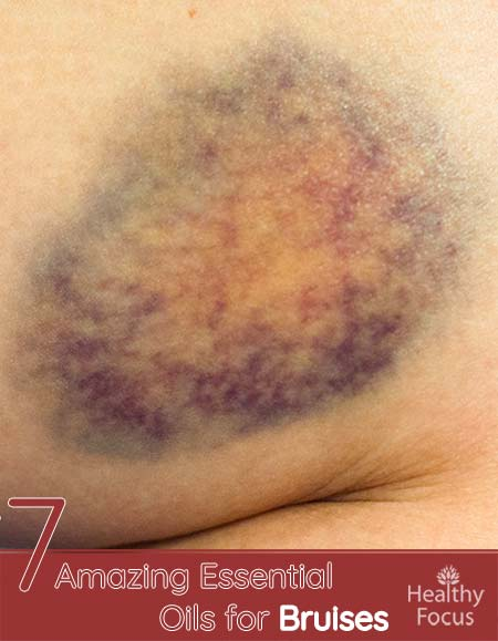 7 Amazing Essential Oils for Bruises