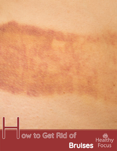 How to Get Rid of Bruises-14 ways