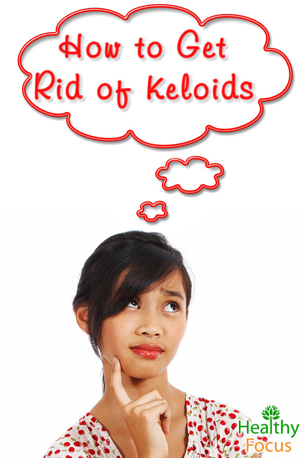 mig-How-to-Get-Rid-of-Keloids