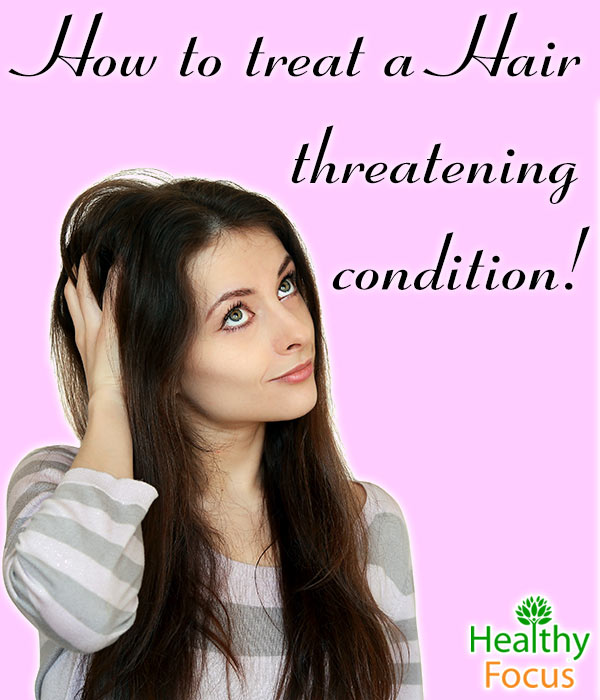 mig-How-to-treat-Hair-threatening--condition