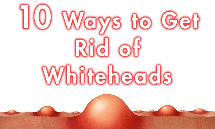 hdr-10-Ways-to-Get-Rid-of-Whiteheads