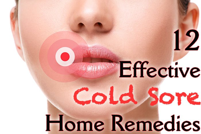 hdr-12-Effective-Cold-Sore-Home-Remedies