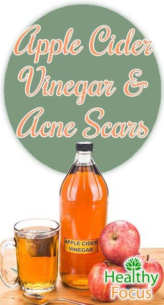 Why you should use Apple Cider Vinegar for Acne