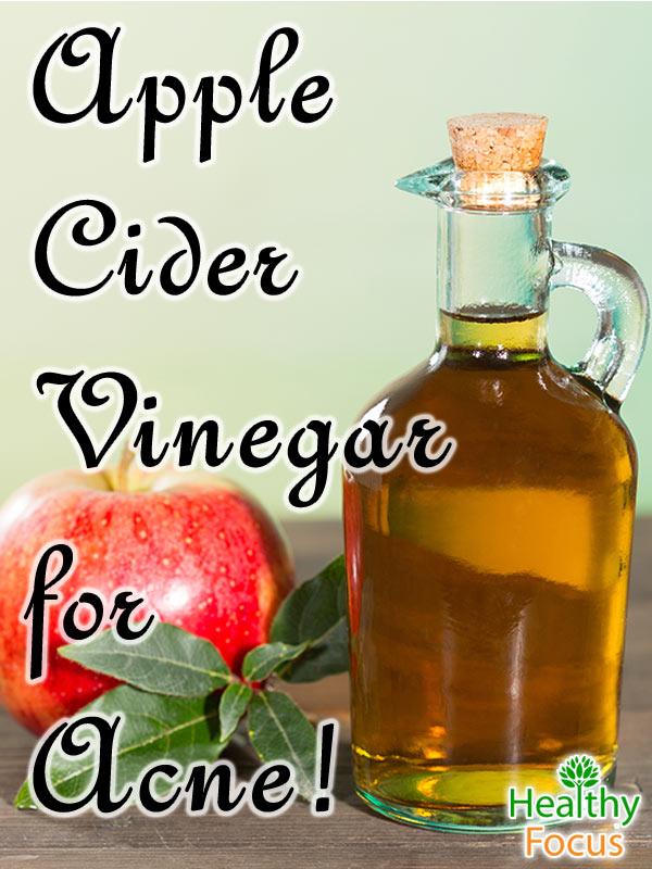 mig-Apple-Cider-Vinegar-for-Acne