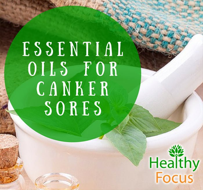 how to get rid of canker sores before they start