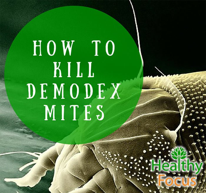 Demodex Are Tiny, White, Parasitic Mites That Inhabit ...