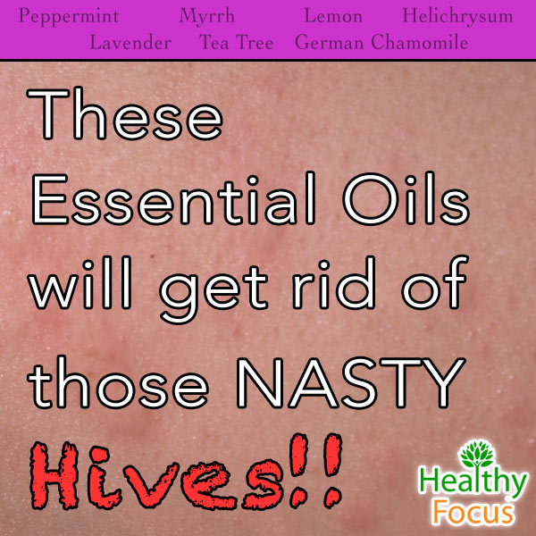 mig-These--Essential-Oils-get-rid-of-those-NASTY-Hives