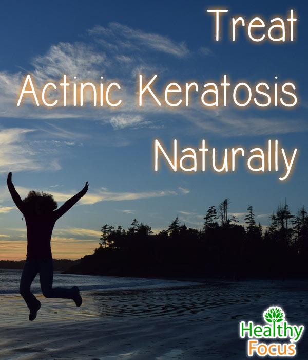 get rid of actinic keratosis