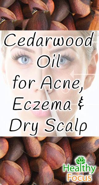 Cedarwood Oil for Skin