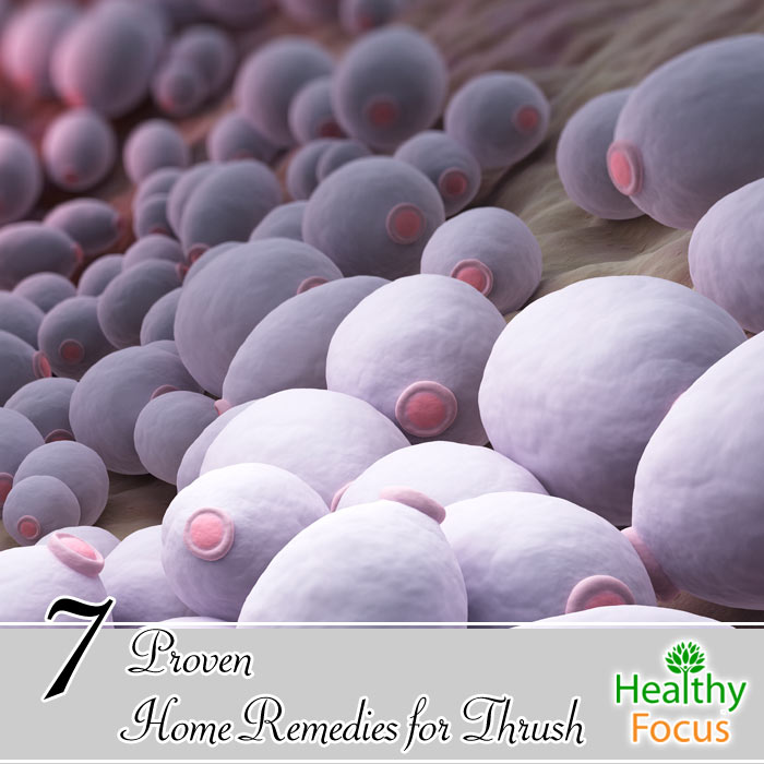 hdr-7-Proven-Home-Remedies-for-Thrush