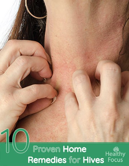 10 Proven Home Remedies for Hives