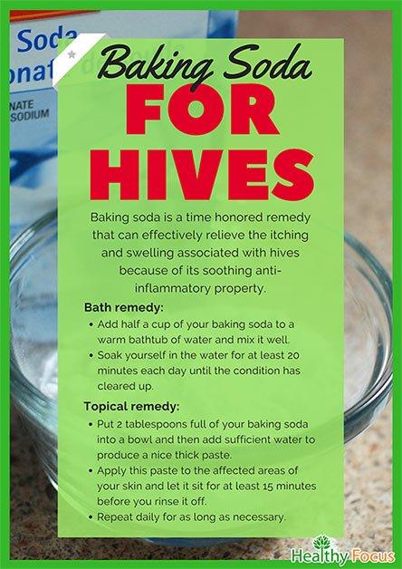 Baking Soda for Hives