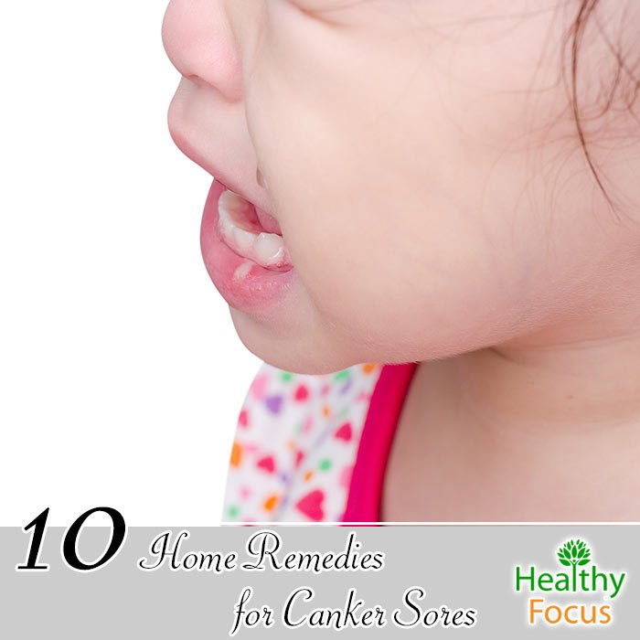 10 Home Remedies For Canker Sores Healthy Focus