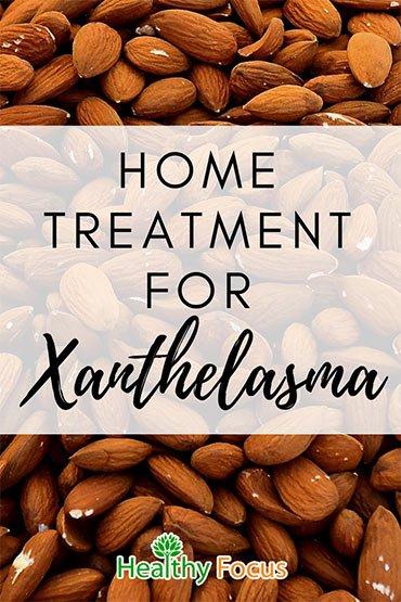Home Treatment for Xanthelasma