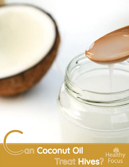 Can Coconut Oil Treat Hives