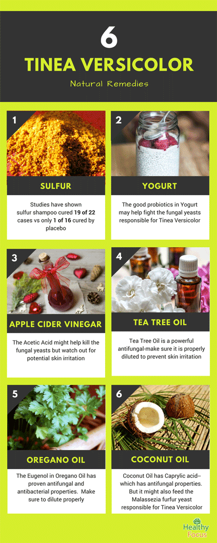 10 Amazing Home Remedies for Tinea Versicolor