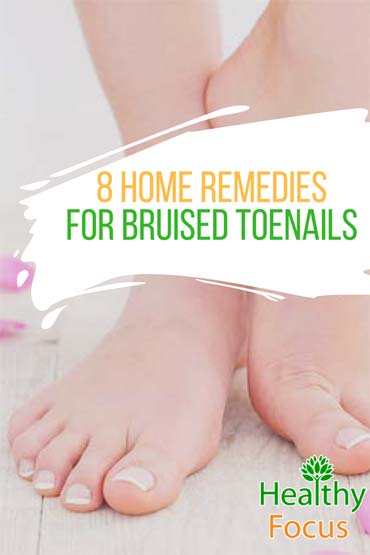 Home Remedies for Bruised Toenails