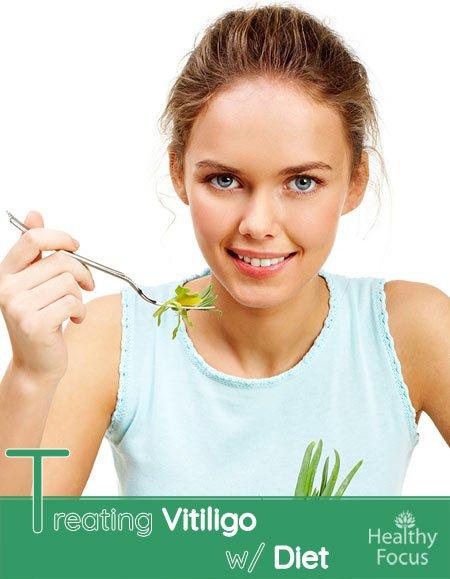 Treating Vitiligo With Diet