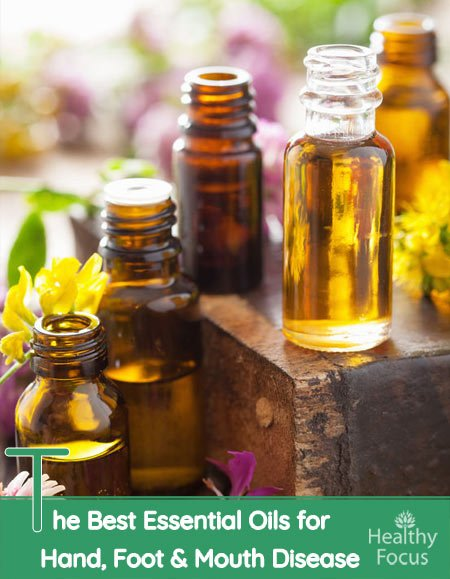 The Best Essential Oils for Hand, Foot & Mouth Disease